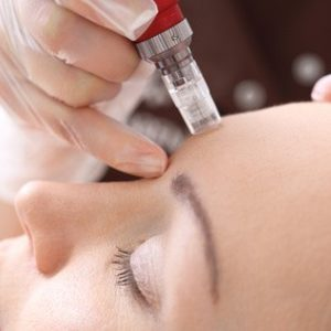 Twój Kosmetolog Aleksandra Wawro -Stalowe Magnolie Beauty Clinic Wawro&Chudzik - Mezoterapia mikroigłowa Dermapen -Twarz