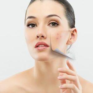 Salon RDS Joanna Staszczyk - Peeling Kwasem SALICYLOWYM ( oczyszczanie, leczenie trądziku)