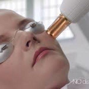 Kosmetyka Estetyczna - Lumenis ResurFX