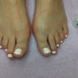 Kosmetologia Karolina Pietkiewicz - Opracowanie paznokci u stóp
