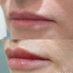 Ideale - Medycyna Estetyczna - Modelowanie/powiększanie ust