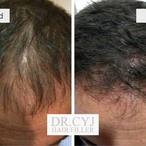 Ideale - Medycyna Estetyczna - Mezoterapia skóry głowy