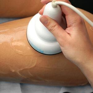 Venus Studio Pięknego Ciała - Liposukcja ultradźwiękowa