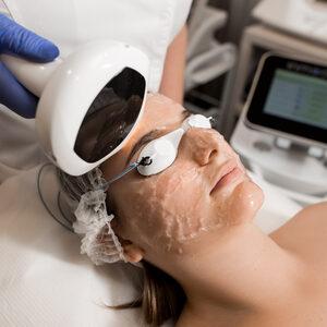 Body Care Clinic - Usuwanie rumienia twarz