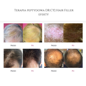 Art of Cosmetology - Terapia peptydowa DR.CYJ Hair Filler