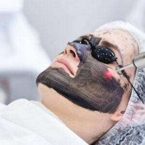 Strefa Kobiet - Laserowy peeling węglowy - Black Doll