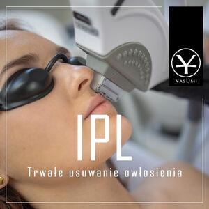 Yasumi Łódź Widzew - Fotoepilacja IPL - usuwanie owłosienia dla pań