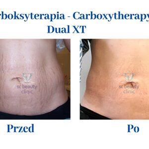 SC Beauty Clinic Chorzów - Karboksyterapia (DUAL XT)