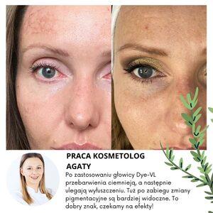 Anna Retkowska kosmetologia estetyczna - Laseroterapia HARMONY - fotoodmładzanie (Alma Dye-VL)