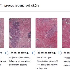 Kosmetologia Profesjonalna Galatea Power - Termolifting igłowy RF