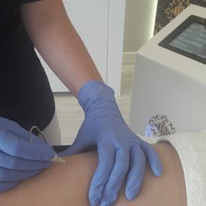 Jean Baptiste Klinika Urody & SPA - Karboksyterapia -  Uda + pośladki